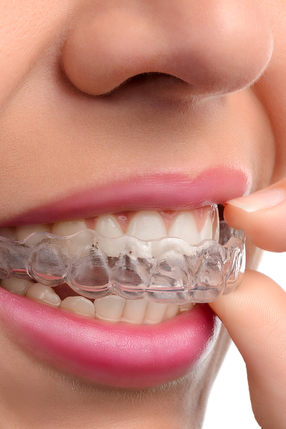 Woman close-up with Invisalign