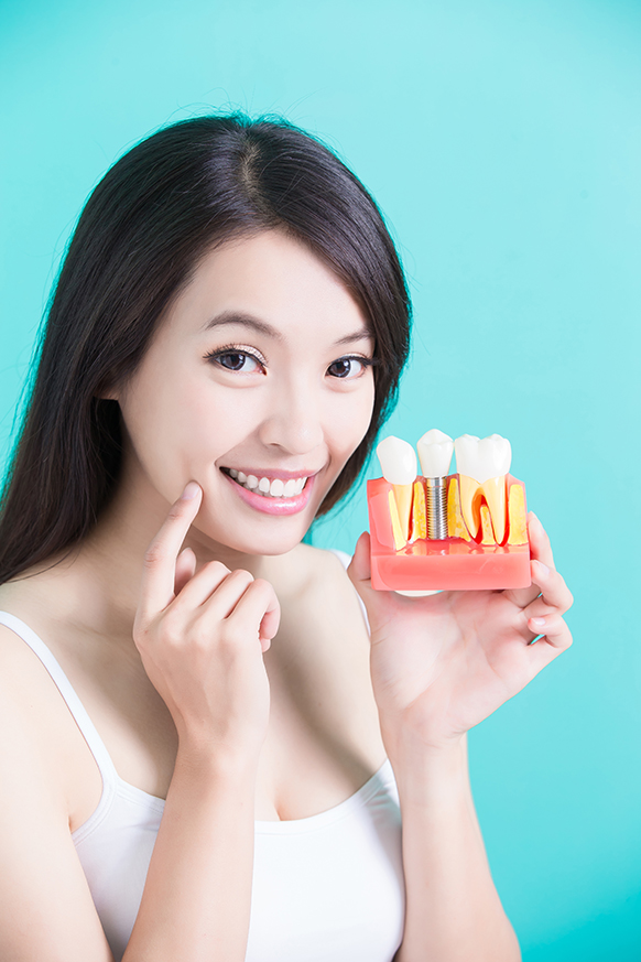 Woman smiling with dental implant model